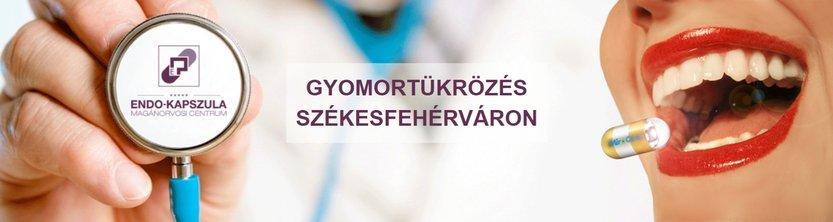 Gyomortükrözés Székesfehérváron